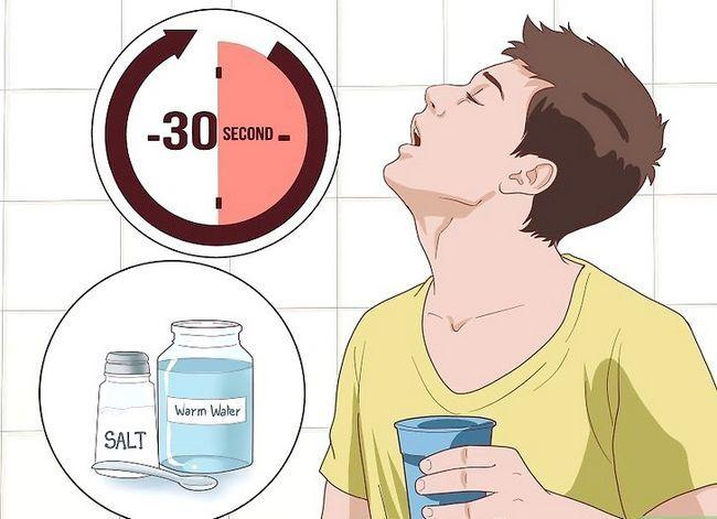 Titel afbeelding Relieve Gum Pain Step 12