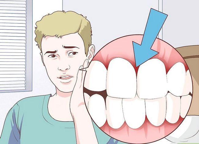 Titel afbeelding Relief Gum Pain Step 4