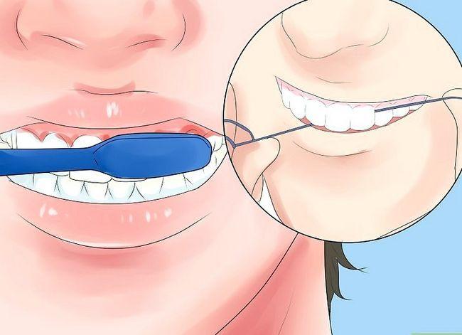 Titel afbeelding Alleviate Orthodontic Brace Pain Step 15