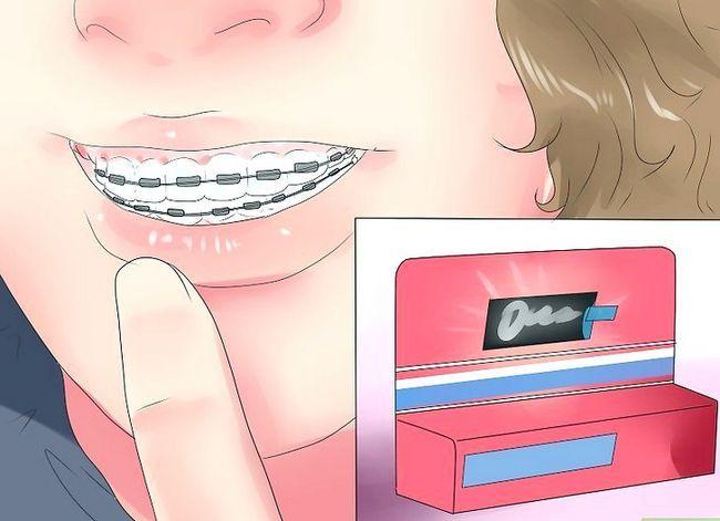 Titel afbeelding Alleviate Orthodontic Brace Pain Step 7