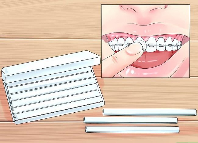 Titel afbeelding Alleviate Orthodontic Brace Pain Step 10