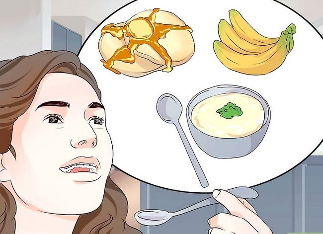 Titel afbeelding Eat Food With New or Jighted Braces Step 1
