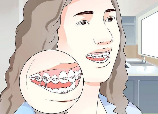 Titel afbeelding Eat Food With New of Tightened Braces Step 12