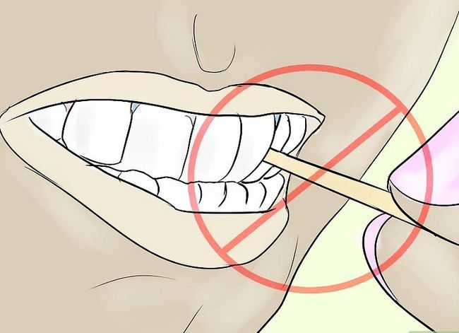 Titel afbeelding Eat With Separators in Your Mouth Stap 5