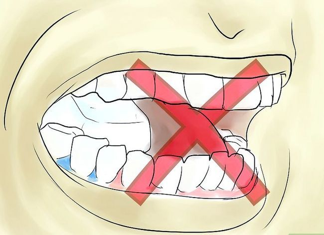 Titel afbeelding Eat With Separators in Your Mouth Step 9