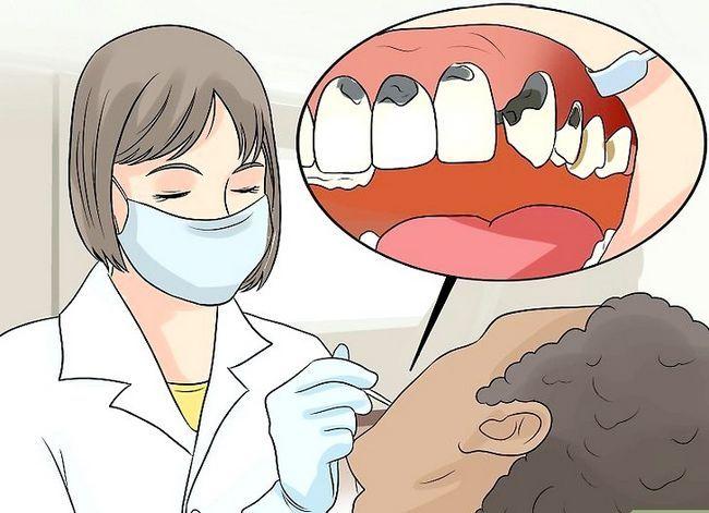 Titel afbeelding Control Bad Breath Step 17