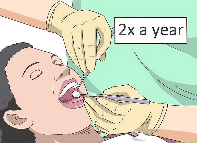 Titel afbeelding Care for Your Teeth Step 12