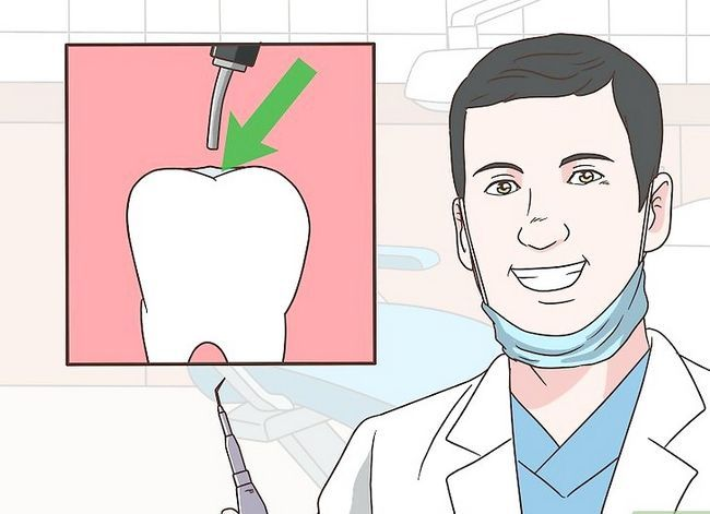 Titel afbeelding Care for Your Teeth Step 13