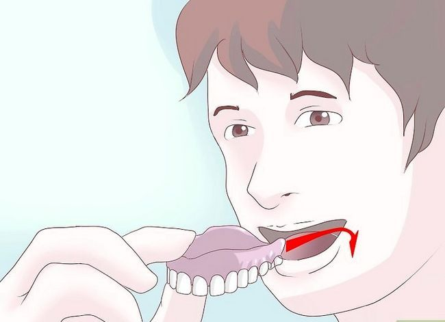 Titel afbeelding Care for Your Dentures Step 4