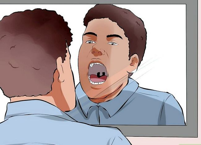 Titel afbeelding Recognize Signs of Oral Cancer Step 1