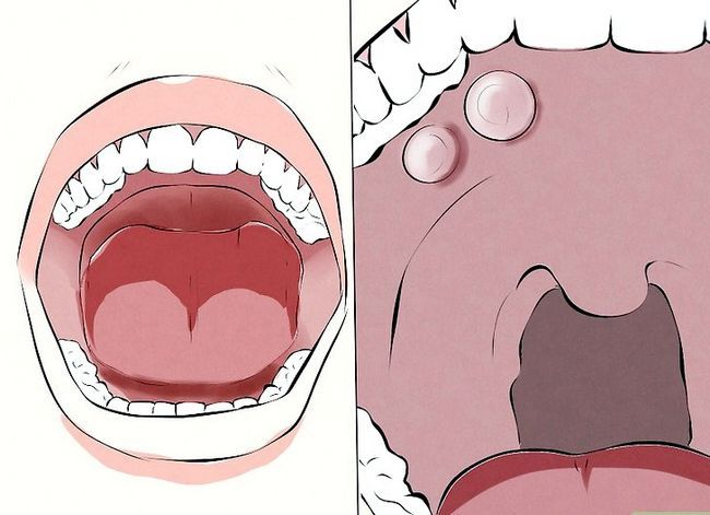 Titel afbeelding Recognize Signs of Oral Cancer Step 4