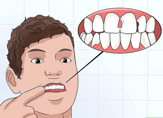 Titel afbeelding Identify a Tooth Abscess Step 9