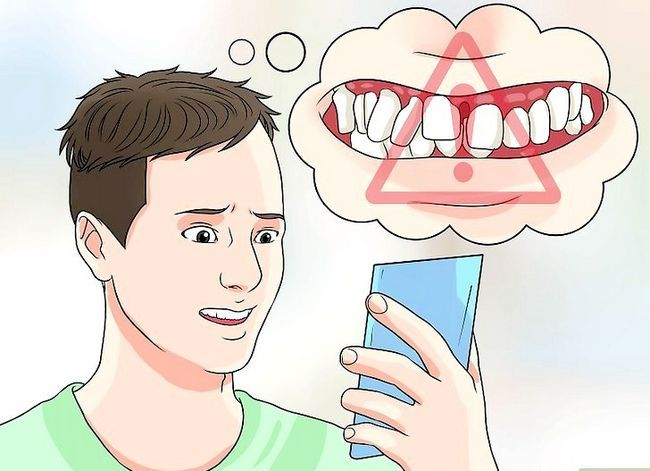 Titel afbeelding Identify a Tooth Abscess Step 10