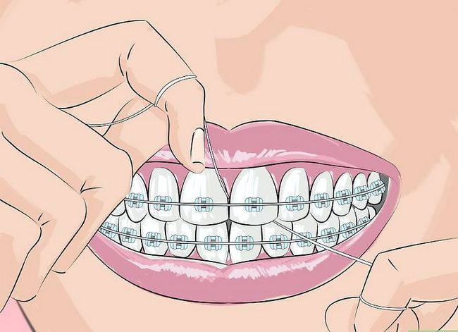Titel afbeelding Deal with Braces Step 2