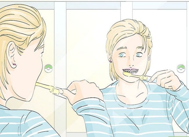 Titel afbeelding Deal with Braces Step 4