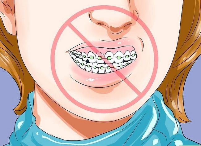 Titel afbeelding Clean Teeth With Braces Step 11