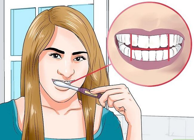Titel afbeelding Clean Teeth With Braces Step 3