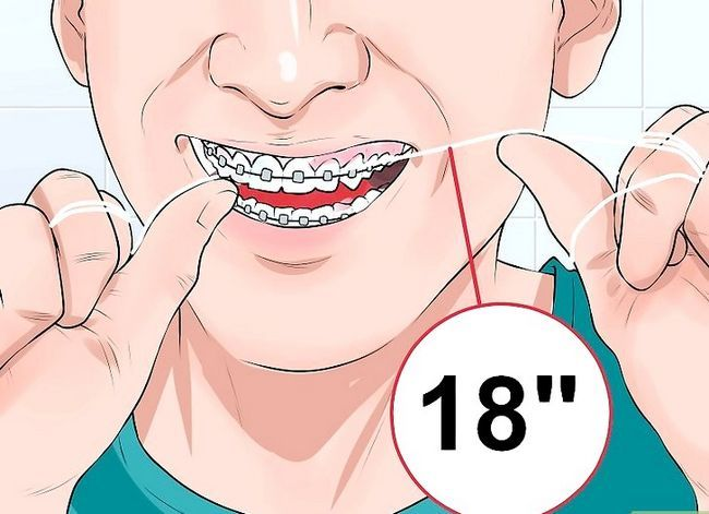 Titel afbeelding Clean Teeth With Braces Step 5