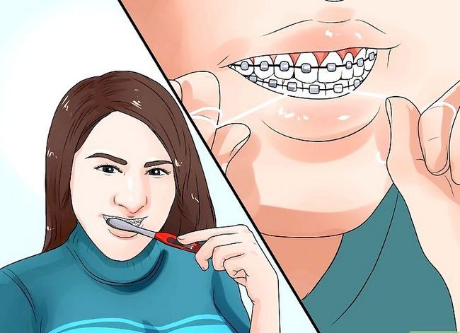 Titel afbeelding Clean Teeth With Braces Step 8