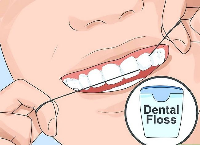 Titel afbeelding Pick Your Teeth Without a Tandenstoker Step 1