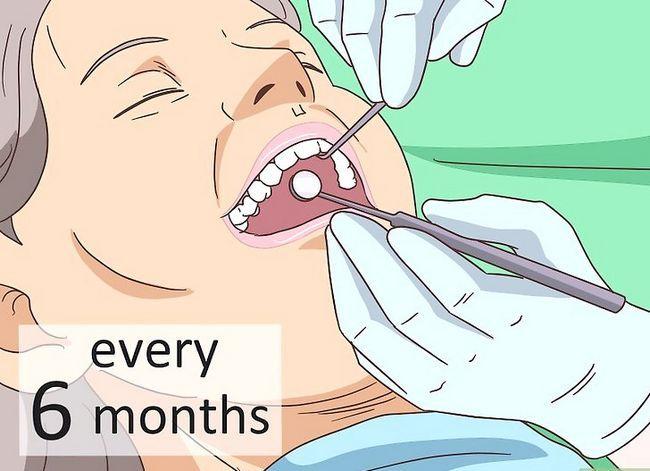Titel afbeelding Maintain Healthy Teeth As You Age Step 6