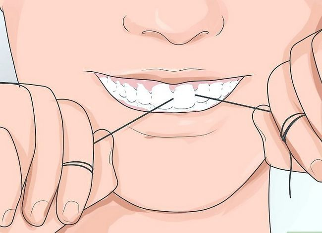 Titel afbeelding Pick Your Teeth Without a Toth Pick Step 4