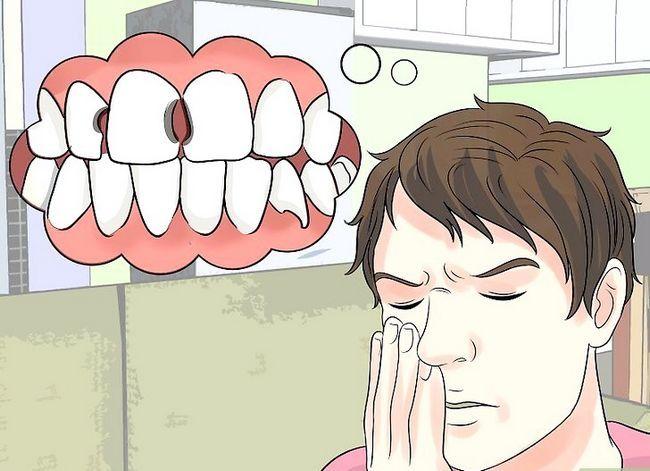 Titel afbeelding Stop Wisdom Tooth Pain Step 15
