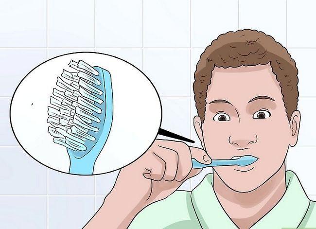 Titel afbeelding Stop Wisdom Tooth Pain Step 4