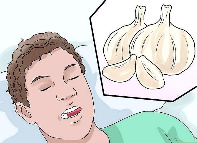 Titel afbeelding Stop Wisdom Tooth Pain Step 9