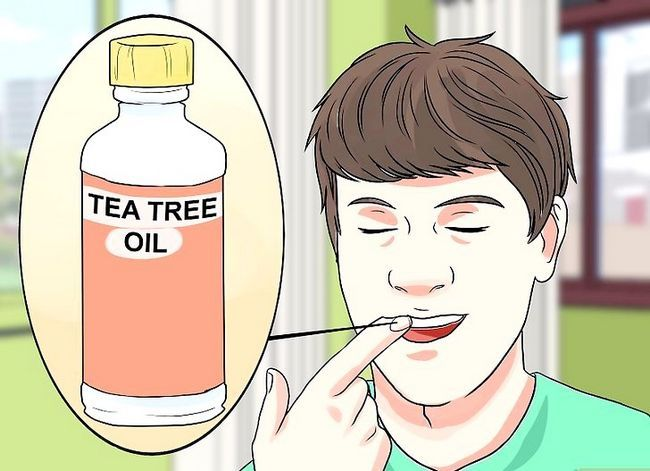 Titel afbeelding Stop Wisdom Tooth Pain Step 10