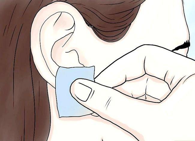 Titel afbeelding Get Your Ears Pierced Step 5