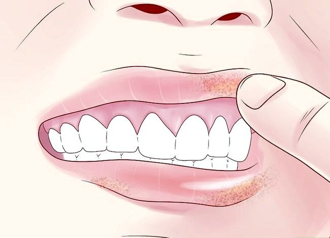 Titel afbeelding Tell if You Have Mouth Cancer Step 4