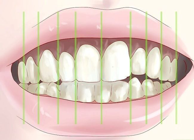 Titel afbeelding Tell if You Have Mouth Cancer Step 5