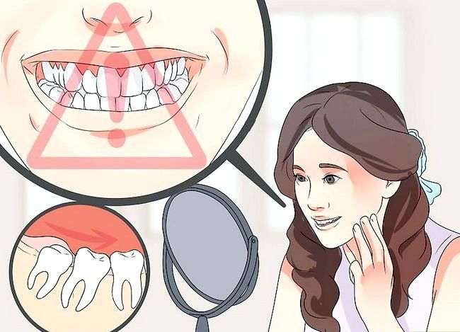 Titel afbeelding Tell if Your Wisdom Teeth Comeeth in Step 5