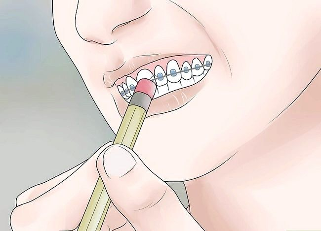 Titel afbeelding Be Happy with Braces Step 12