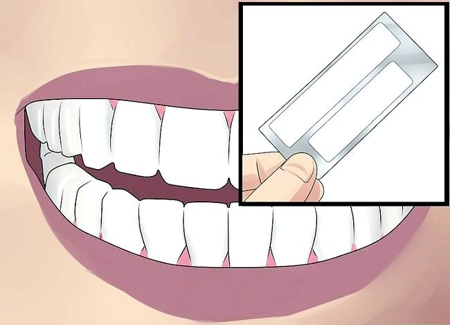 Titel afbeelding Get Perfect Teeth Step 11