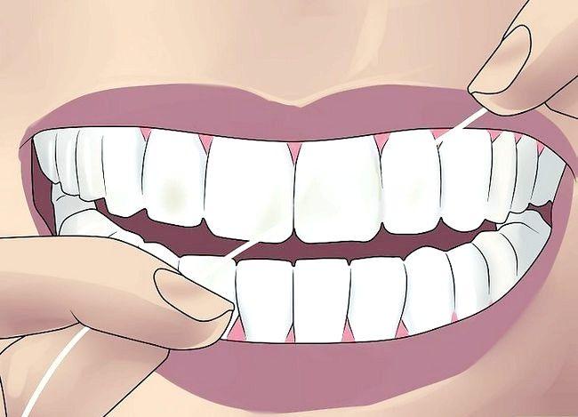 Titel afbeelding Get Perfect Teeth Step 4