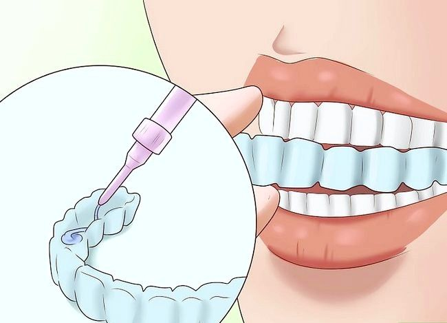 Titel afbeelding Have the Perfect Smile Step 11