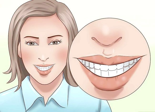 Titel afbeelding Have the Perfect Smile Step 5