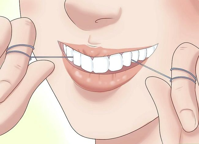 Titel afbeelding Have the Perfect Smile Step 8