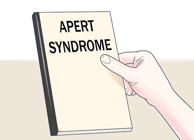 Titel afbeelding Treat a Child with Apert Syndrome Step 1
