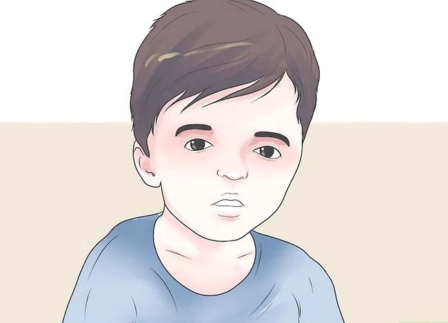 Titel afbeelding Treat a Child with Apert Syndrome Step 4