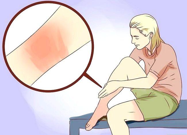 Hoe brandwonden met honing te behandelen