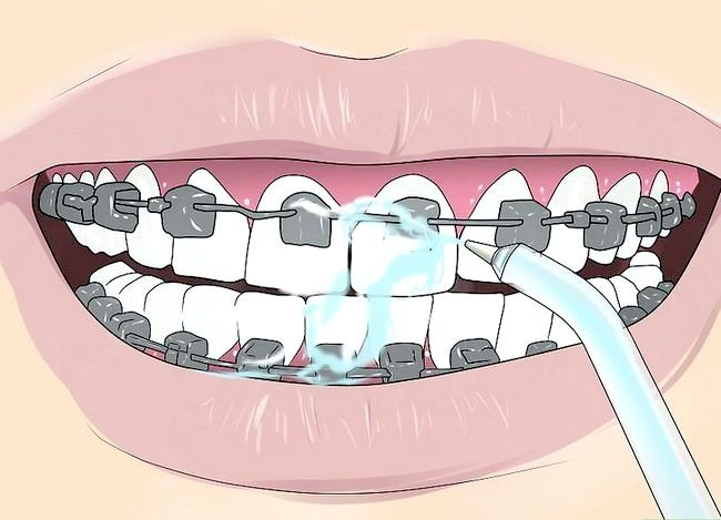 Titel afbeelding Floss With Braces Step 12