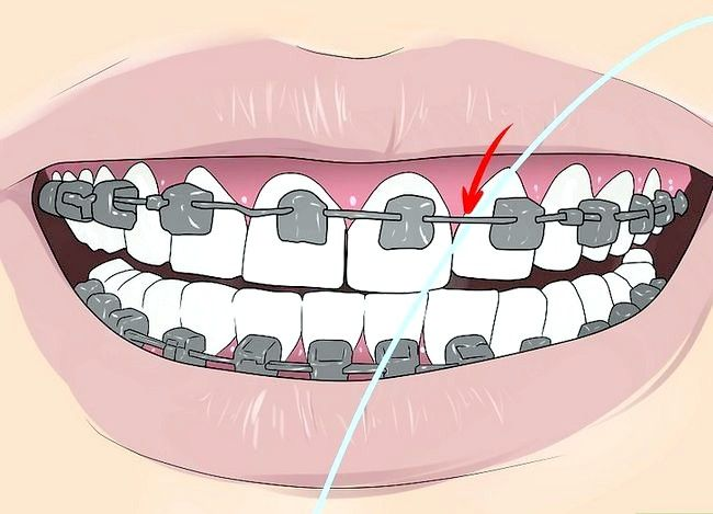 Titel afbeelding Floss With Braces Step 2