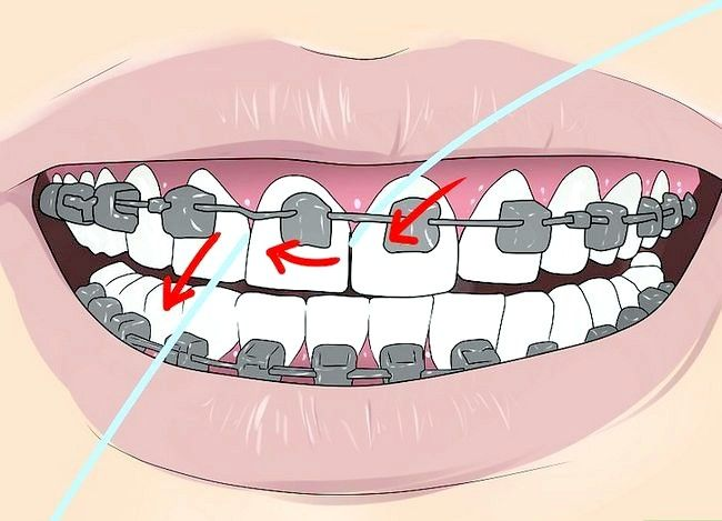 Titel afbeelding Floss With Braces Step 3