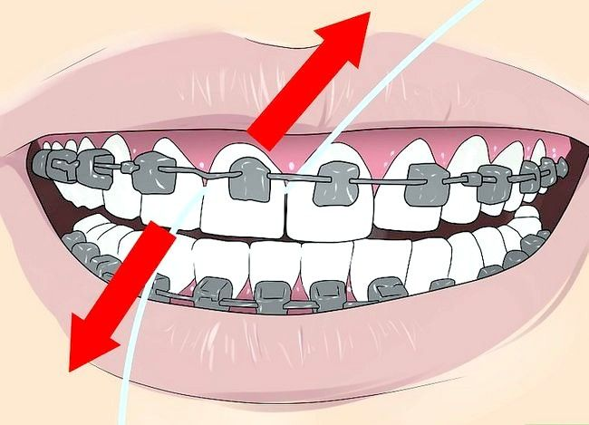 Titel afbeelding Floss With Braces Step 4