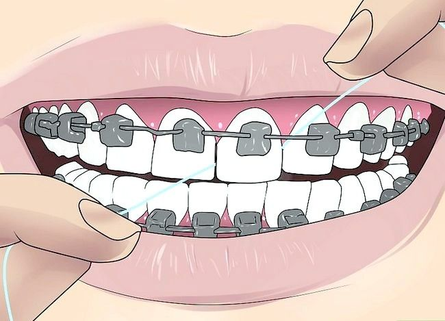 Titel afbeelding Floss With Braces Step 6